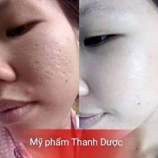 Mỹ phẩm Thanh Dược của thanhthiennguyen945 tại Hồ Chí Minh - 3445370